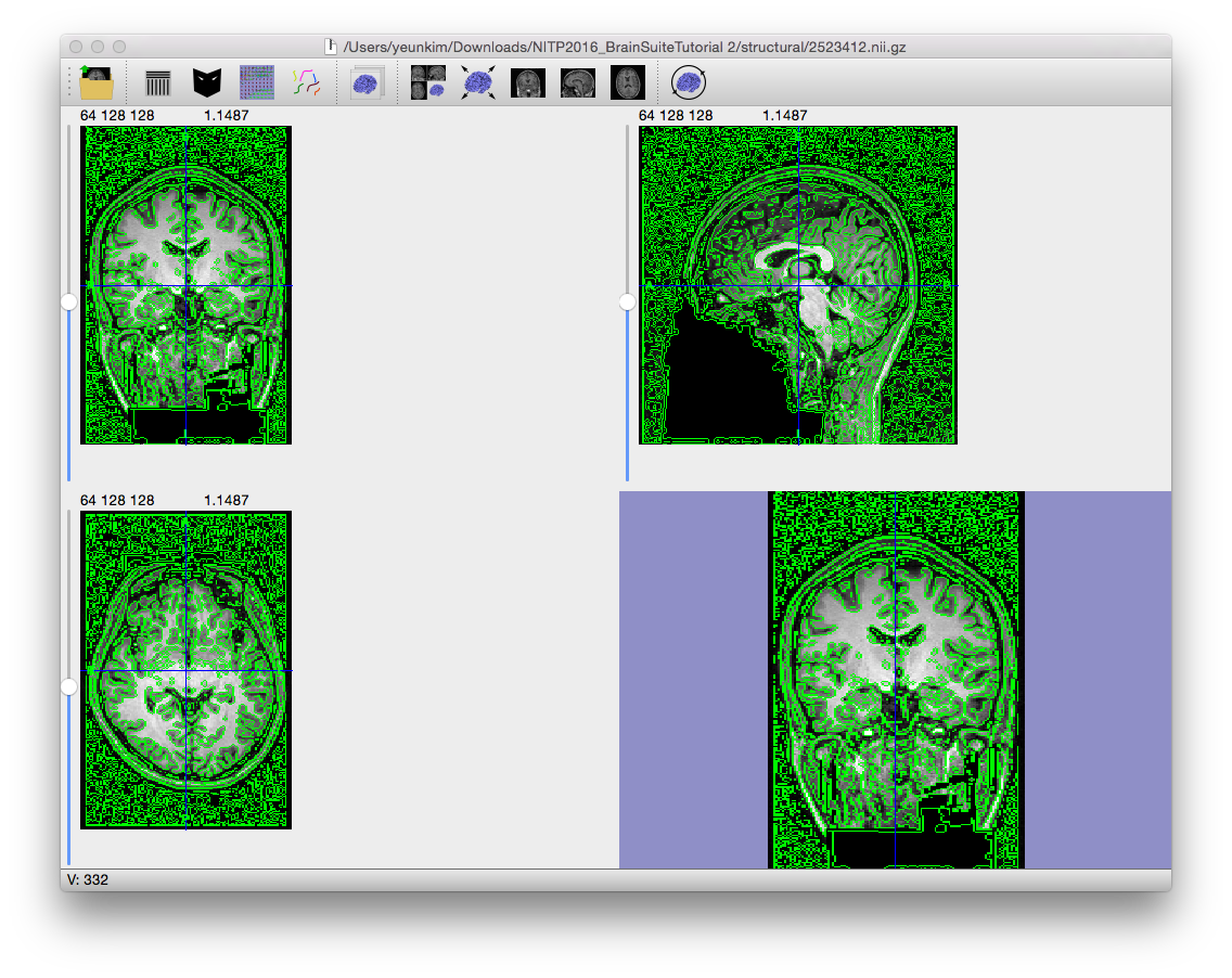 The result of applying the edge detector operator to an MRI.