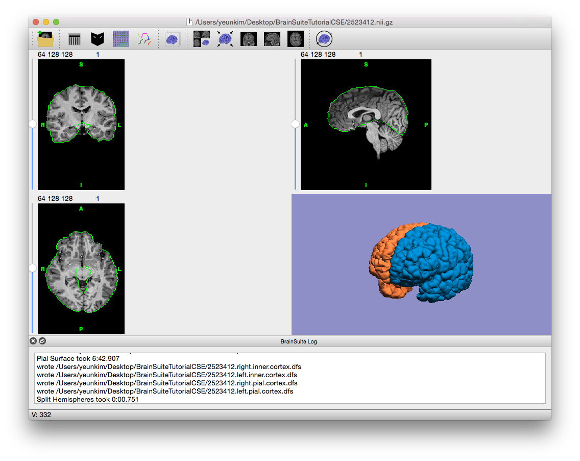 Tutorials: Cortical Surface Extraction Sequence   BrainSuite