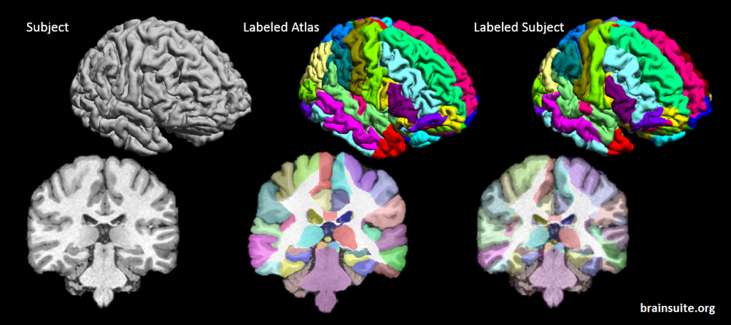 BCI-DNI_brain_atlas_subject_mapped2